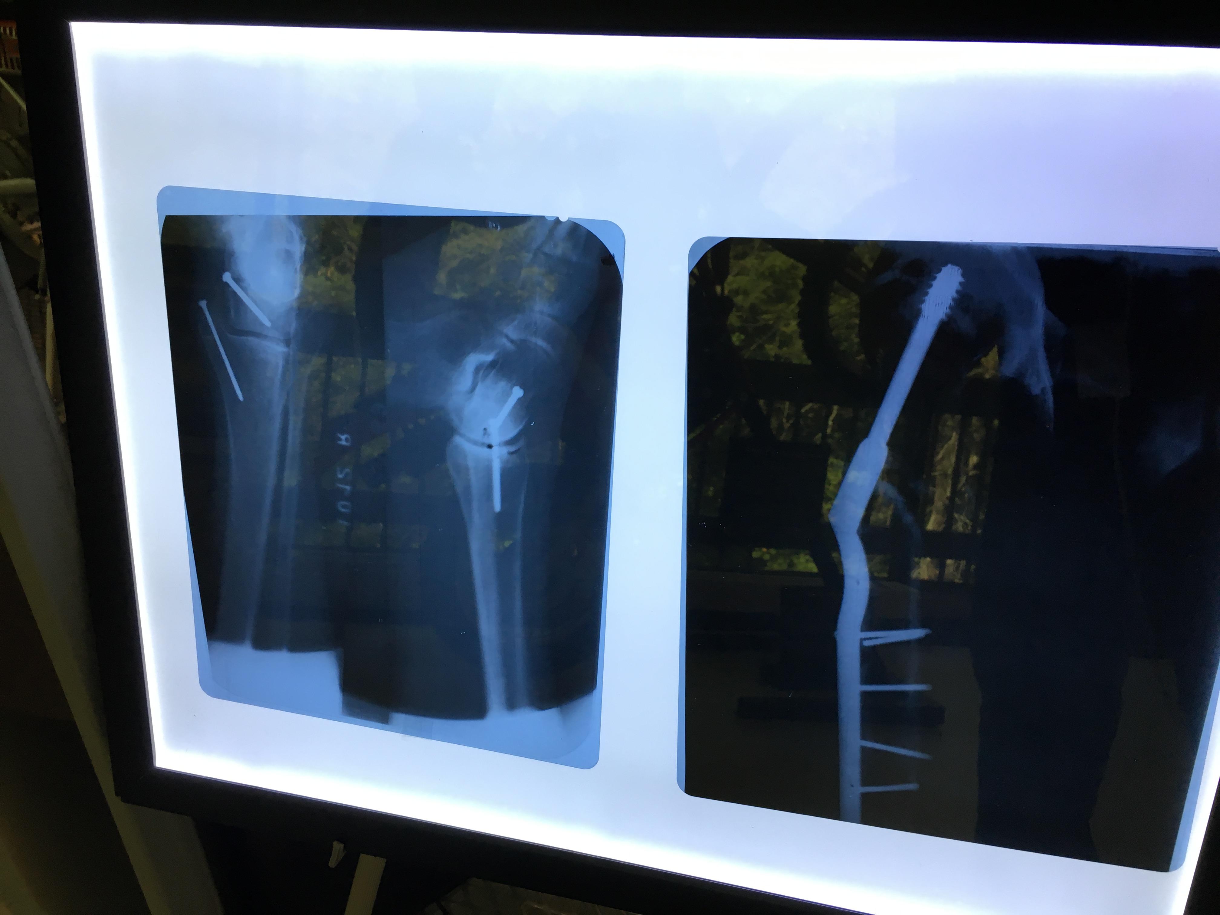 Evel Knievel's X Rays